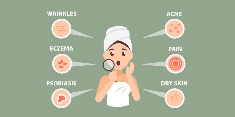 cbd balm benefits skin